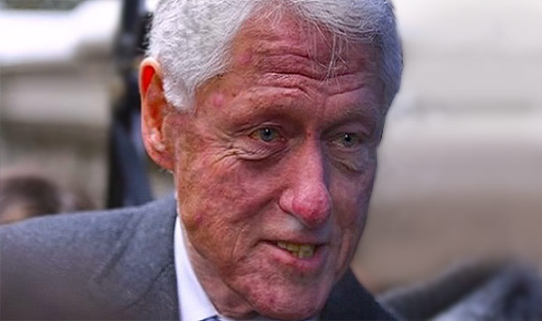 Image result for Bill clinton's red nose